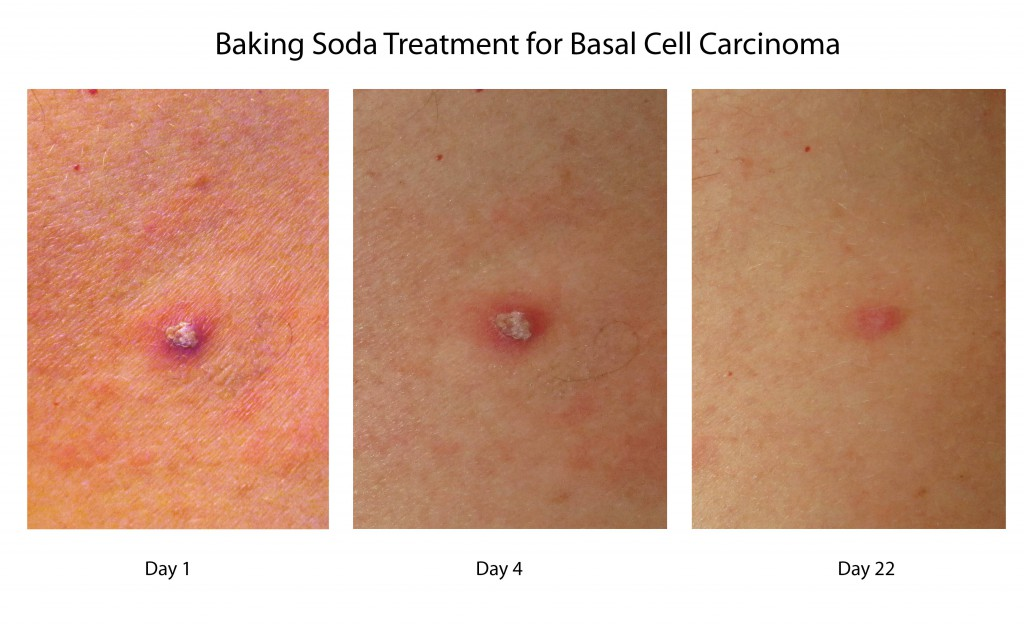 how to use baking soda and coconut oil for basal cell carcinoma